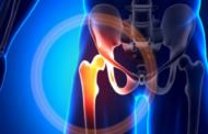 Artrosi dell'anca, insorgenza ed evoluzione della patologia (1°step)
