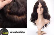 Da Future Hair arriva la protesi tricologica Liberty che risolve l'alopecia totale o avanzata